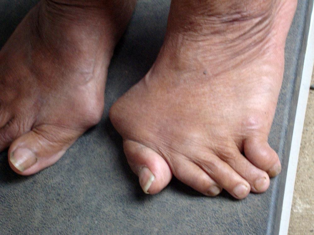 Изображение - Заболевания голеностопных суставов ног 2147f39ec39f976d4fb37ec2540decdd