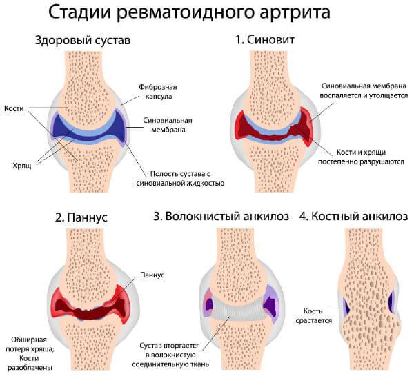 Низкий иммунитет вызывает артрит