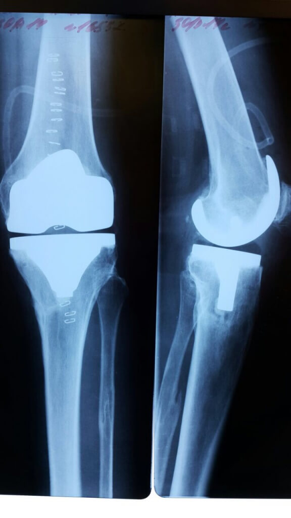 Эндопротезирование коленного сустава москва боли суставов детей